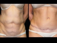 Atlanta Tummy Tuck Patient 44 Before & After