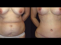 Atlanta Tummy Tuck Patient 07 Before & After