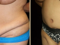 Atlanta Tummy Tuck Patient 4 Before & After
