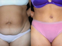 Atlanta Tummy Tuck Patient 5 Before & After