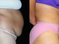 Atlanta Tummy Tuck Patient 6 Before & After