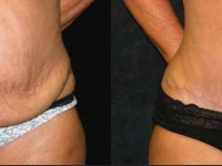 Atlanta Tummy Tuck Patient 54 Before & After