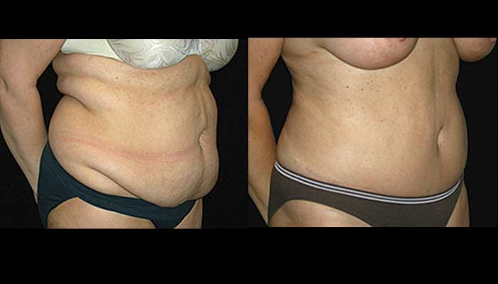Atlanta Tummy Tuck Patient 11 Before & After