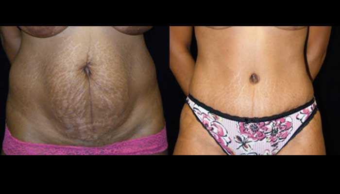 Atlanta Tummy Tuck Patient 14 Before & After