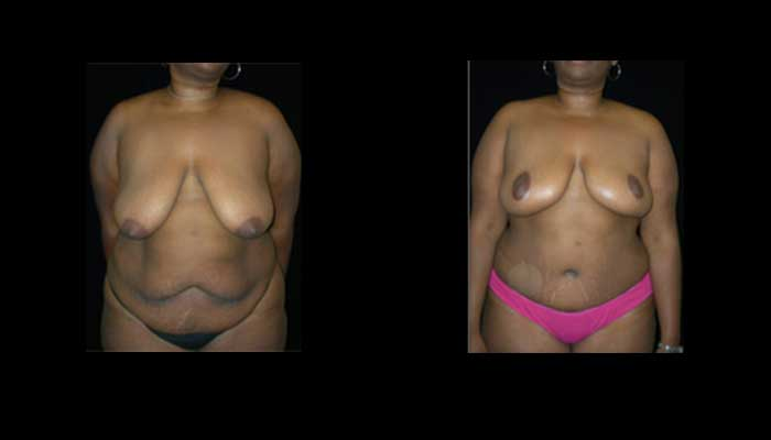 Atlanta Tummy Tuck Patient 15 Before & After