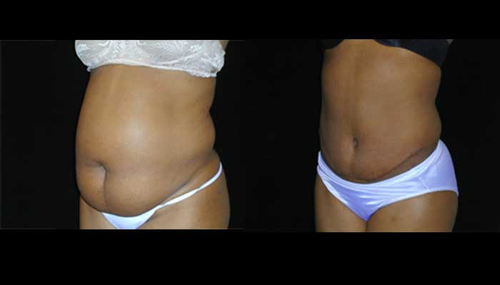 Atlanta Tummy Tuck Patient 18 Before & After