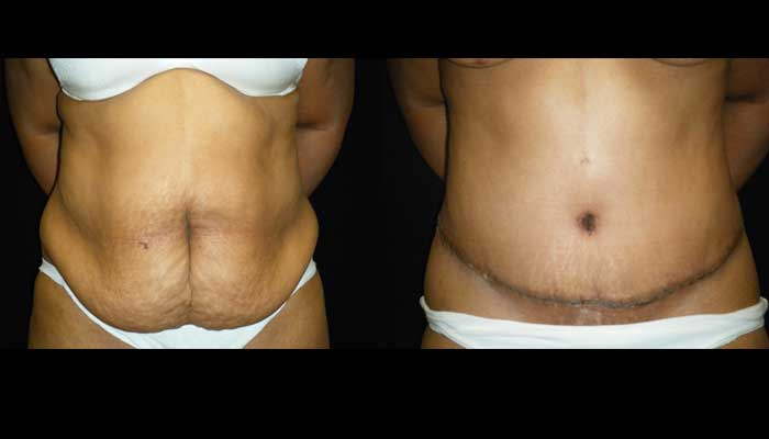 Atlanta Tummy Tuck Patient 19 Before & After