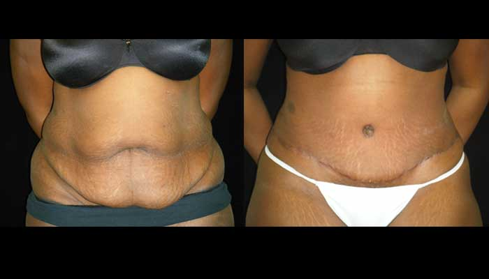 Atlanta Tummy Tuck Patient 20 Before & After