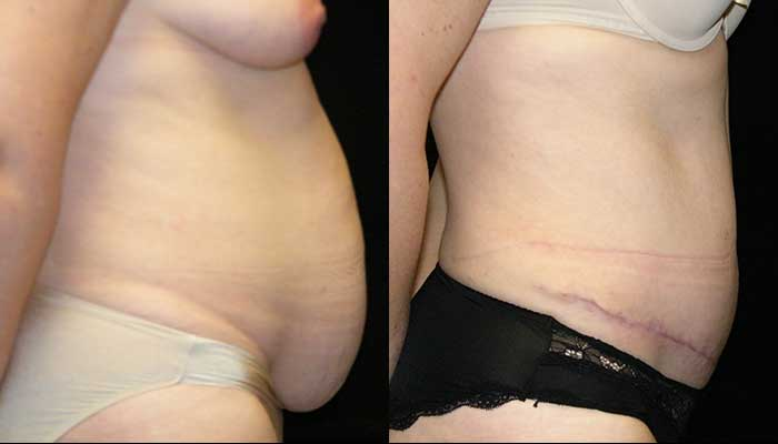 Atlanta Tummy Tuck Patient 22 Before & After