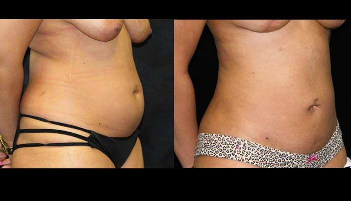 Atlanta Tummy Tuck Patient 24 Before & After