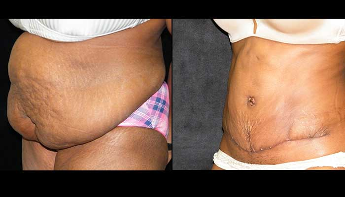 Atlanta Tummy Tuck Patient 25 Before & After