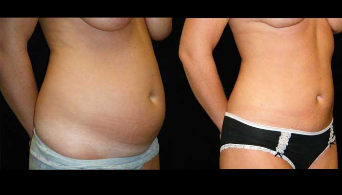 Atlanta Tummy Tuck Patient 36 Before & After