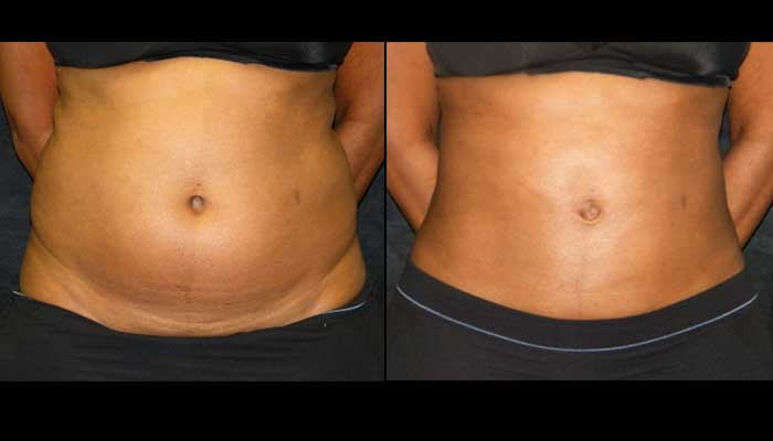 Atlanta Tummy Tuck Patient 42 Before & After