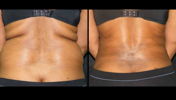 Atlanta Tummy Tuck Patient 43 Before & After