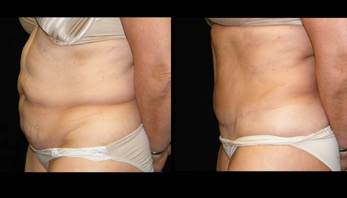 Atlanta Tummy Tuck Patient 46 Before & After