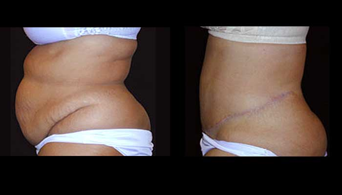 Atlanta Tummy Tuck Patient 08 Before & After