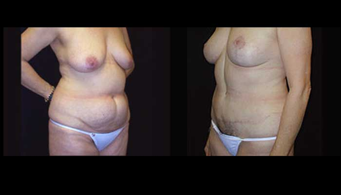 Atlanta Tummy Tuck Patient 09 Before & After