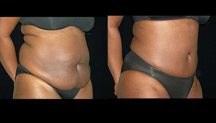 Atlanta Tummy Tuck Patient 10 Before & After