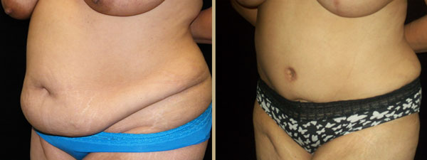 Atlanta Tummy Tuck Patient 04 Before & After