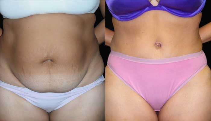 Atlanta Tummy Tuck Patient 05 Before & After