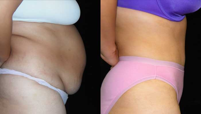 Atlanta Tummy Tuck Patient 06 Before & After