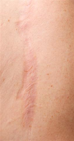 scouthern plastic surgery scar removal