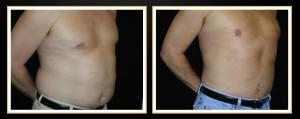 atlanta-liposuction-results (2)