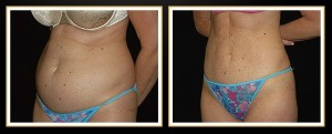 atlanta-liposuction-results (2)
