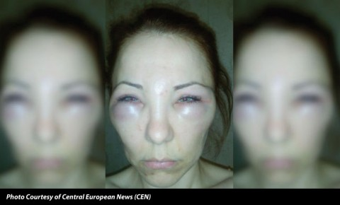 the importance of board certification / beware of bad botox