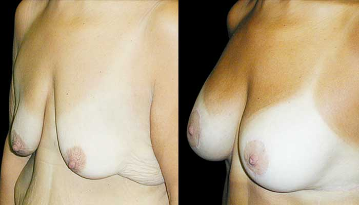 post weight loss plastic surgery
