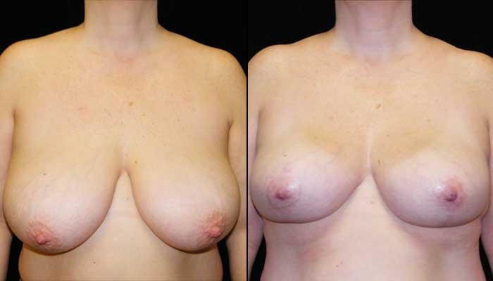 breast lift / mastopexy atlanta