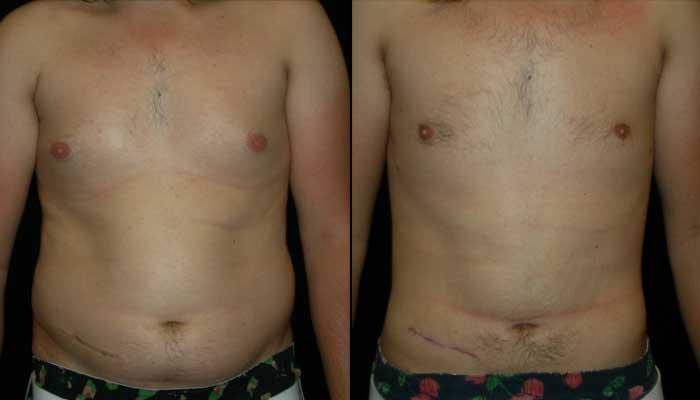 Top Liposuction Surgeon