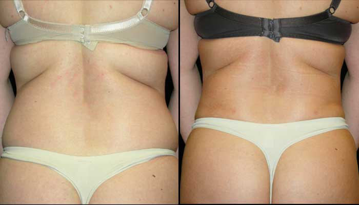 Top Liposuction Surgeon