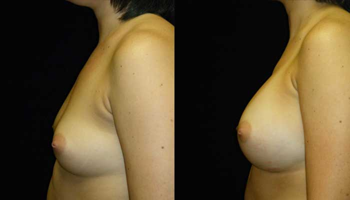 atlanta breast implants