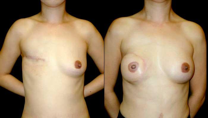 atlanta breast reconstruction