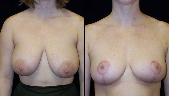 breast reduction atlanta georgia