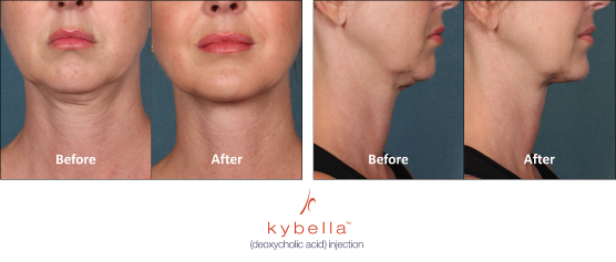 kybella chin reduction atlanta duluth ga