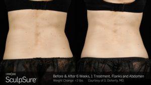 Atlanta Sculpsure Results (2)