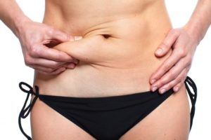 Tips for a Smooth Tummy Tuck Recovery